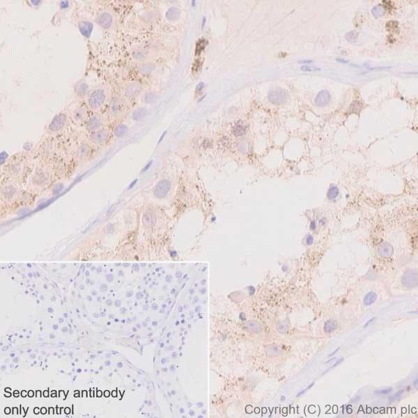Immunohistochemistry (Formalin/PFA-fixed paraffin-embedded sections) - Anti-Niemann Pick C2 antibody [EPR19993-145-1] (ab218192)