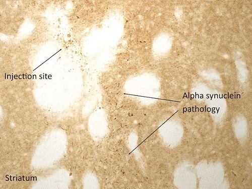 Immunohistochemistry (Formalin/PFA-fixed paraffin-embedded sections) - Recombinant human Alpha-synuclein protein aggregate (Active) (ab218819)