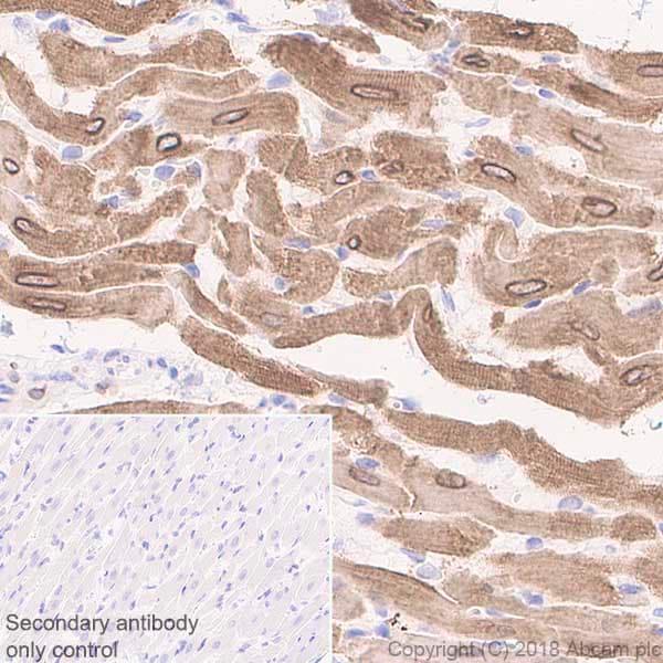 Immunohistochemistry (Formalin/PFA-fixed paraffin-embedded sections) - Anti-Phospholamban antibody [EPR21897] (ab219626)