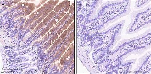 Immunohistochemistry (Formalin/PFA-fixed paraffin-embedded sections) - Anti-GSDMD antibody [EPR20859] (ab219800)