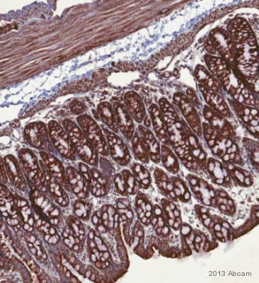 Immunohistochemistry (Formalin/PFA-fixed paraffin-embedded sections) - Anti-Fatty Acid Synthase antibody (ab22759)