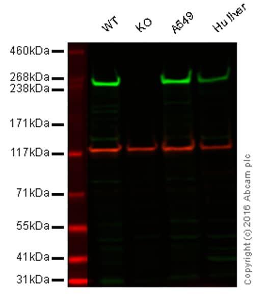 Western blot - Anti-Fatty Acid Synthase antibody (ab22759)