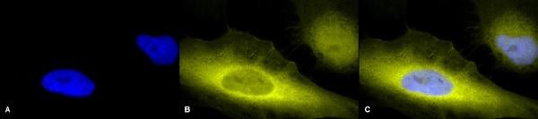 Immunocytochemistry/ Immunofluorescence - Anti-Ubiquitin antibody (ab223613)