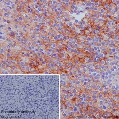 Immunohistochemistry (Formalin/PFA-fixed paraffin-embedded sections) - Anti-CD40 antibody [EPR20735] (ab224639)