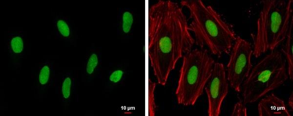 Immunocytochemistry/ Immunofluorescence - Anti-PARP1 antibody (ab227244)