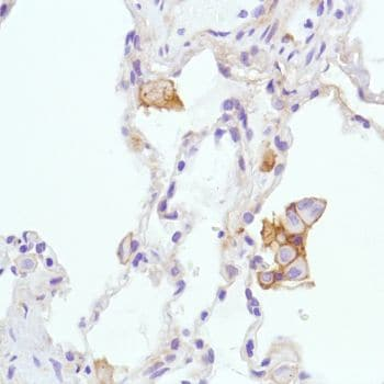 Immunohistochemistry (Formalin/PFA-fixed paraffin-embedded sections) - Anti-CD276 antibody [SP206] (ab227670)