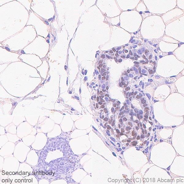 Immunohistochemistry (Formalin/PFA-fixed paraffin-embedded sections) - Anti-SOX10 antibody [SP267] (ab227680)