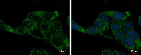 Immunocytochemistry/ Immunofluorescence - Anti-ADHFE1 antibody (ab229146)