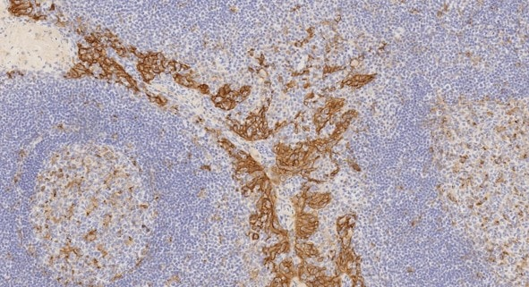 Immunohistochemistry (Formalin/PFA-fixed paraffin-embedded sections) - Anti-PD-L1 antibody [73-10]