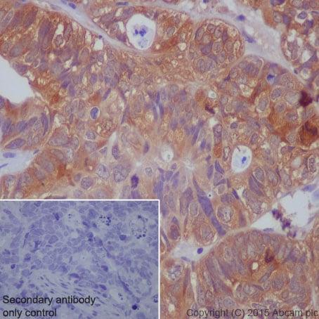 Immunohistochemistry (Formalin/PFA-fixed paraffin-embedded sections) - Anti-PAK1 (phospho S144) + PAK2 (phospho S141) + PAK3 (phospho S154) antibody [EP656Y] (ab239830)