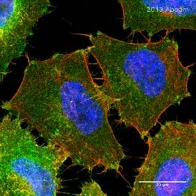 Immunocytochemistry/ Immunofluorescence - Anti-Integrin beta 1 antibody [P5D2] (ab24693)