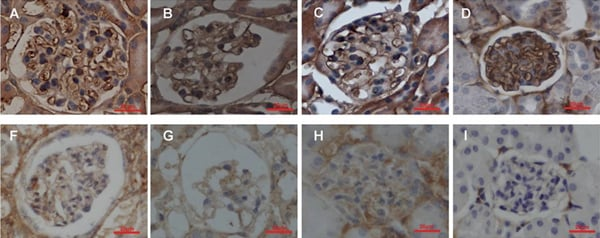 Immunohistochemistry (Formalin/PFA-fixed paraffin-embedded sections) - Anti-Integrin beta 1 antibody [P5D2] (ab24693)
