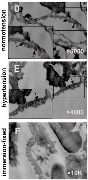 Electron Microscopy - Anti-Integrin beta 1 antibody [P5D2] (ab24693)