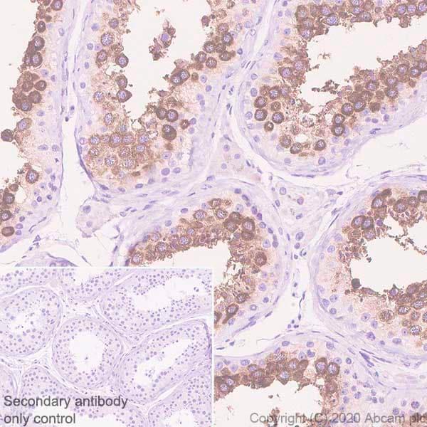 Immunohistochemistry (Formalin/PFA-fixed paraffin-embedded sections) - Anti-Ly-6K antibody [EPR23021-61] (ab246486)