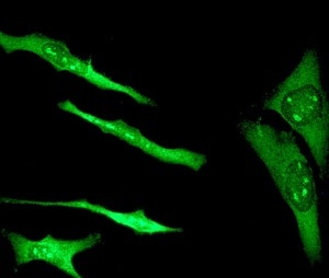 Immunocytochemistry - Anti-S100 alpha antibody [EPR5251] - BSA and Azide free (ab247841)