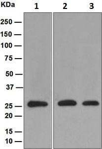 Western blot - Anti-Proteasome 20S alpha 5/PSMA5 antibody [EPR5832] - BSA and Azide free (ab247843)