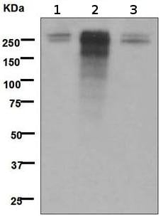 Western blot - Anti-Desmoplakin antibody [EPR4383(2)] - BSA and Azide free (ab247866)