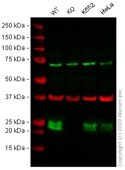 Western blot - Anti-CBFb antibody [EPR6321] - BSA and Azide free (ab247963)