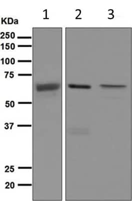 Western blot - Anti-SENP2 antibody [EPR4356(2)] - BSA and Azide free (ab247982)