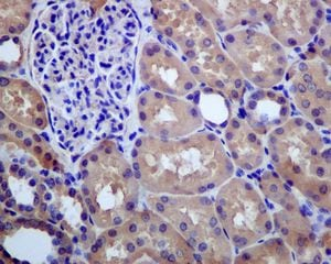 Immunohistochemistry (Formalin/PFA-fixed paraffin-embedded sections) - Anti-Glutathione Synthetase antibody [EPR6562] - BSA and Azide free (ab248015)