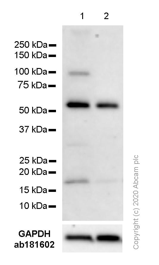 Western blot - Anti-Cdc25B antibody [EPR3459(2)] - BSA and Azide free (ab248020)