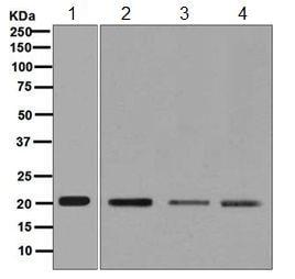 Western blot - Anti-UBE2C antibody [EPR5161(2)] - BSA and Azide free (ab248093)