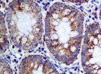 Immunohistochemistry (Formalin/PFA-fixed paraffin-embedded sections) - Anti-ME2 antibody [EPR7218] - BSA and Azide free (ab248127)