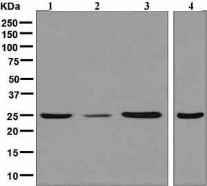 Western blot - Anti-UCHL3 antibody [EPR5332] - BSA and Azide free (ab248136)