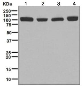 Western blot - Anti-CPSF2/CPSF100 antibody [EPR7599] - BSA and Azide free (ab248172)
