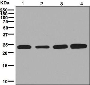 Western blot - Anti-RPE antibody [EPR7464] - BSA and Azide free (ab248202)