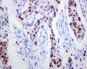 Immunohistochemistry (Formalin/PFA-fixed paraffin-embedded sections) - Anti-MCM3 antibody [EPR7080] - BSA and Azide free (ab248222)