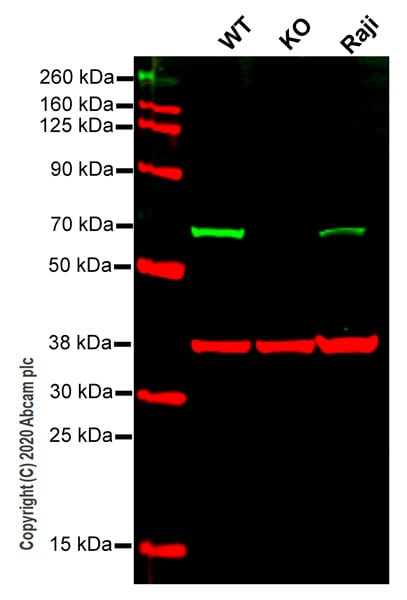 Western blot - Anti-CBS antibody [EPR8578] - BSA and Azide free (ab248359)