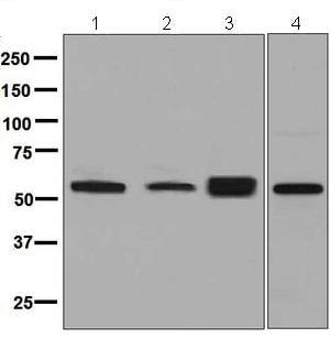 Western blot - Anti-LACTB antibody [EPR8502] - BSA and Azide free (ab248369)