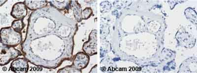 Immunohistochemistry (Formalin/PFA-fixed paraffin-embedded sections) - Anti-LAMP1 antibody [H4A3] (ab25630)