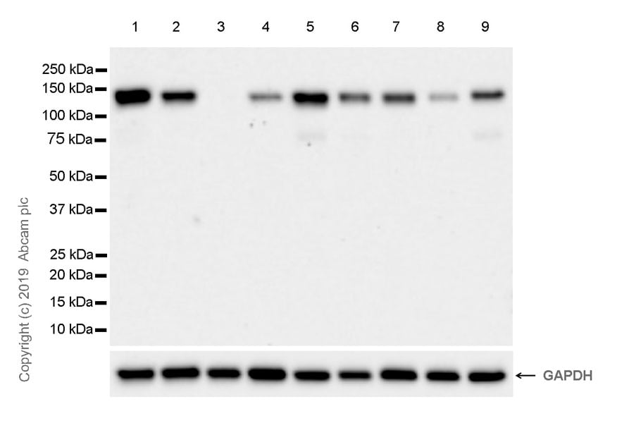 Western blot - Anti-Eph receptor B4/HTK antibody [EPR23222-24] (ab254301)