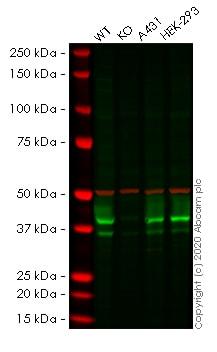 Western blot - Anti-Bmi1 antibody [BMI1/2823] - BSA and Azide free (ab269688)