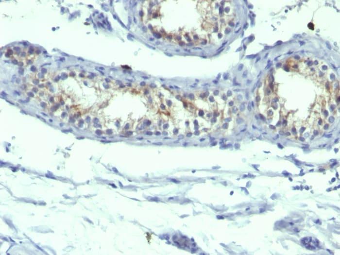 Immunohistochemistry (Formalin/PFA-fixed paraffin-embedded sections) - Anti-Prolactin Receptor/PRL-R antibody [B6.2 + PRLR742] - BSA and Azide free (ab269737)