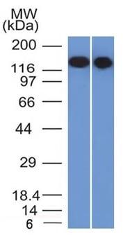 Western blot - Anti-CD22 antibody [BLCAM/1795] - BSA and Azide free (ab269755)