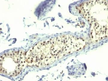 Immunohistochemistry (Formalin/PFA-fixed paraffin-embedded sections) - Anti-Thymidylate Synthase antibody (ab269788)