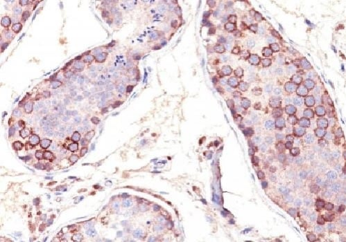 Immunohistochemistry (Formalin/PFA-fixed paraffin-embedded sections) - Anti-MAGEA1 antibody (ab269794)