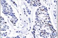 Immunohistochemistry (Formalin/PFA-fixed paraffin-embedded sections) - Anti-Progesterone Receptor antibody (ab269796)