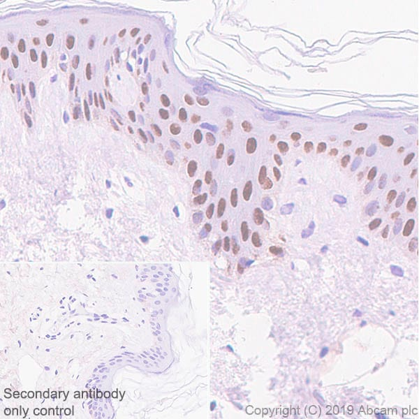 Immunohistochemistry (Formalin/PFA-fixed paraffin-embedded sections) - Anti-p40 - DeltaNp63 antibody [EPR17863-47] - BSA and Azide free (ab269956)