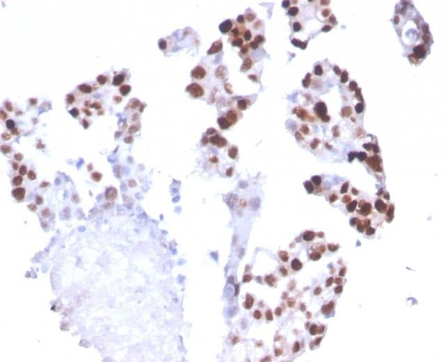 Immunohistochemistry (Formalin/PFA-fixed paraffin-embedded sections) - Anti-RNA polymerase II CTD repeat YSPTSPS antibody [CTD4H8] (ab270250)