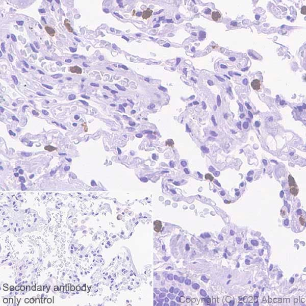 Immunohistochemistry (Formalin/PFA-fixed paraffin-embedded sections) - Anti-PR3 antibody [EPR23253-35] (ab270441)
