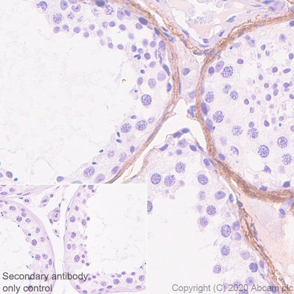 Immunohistochemistry (Formalin/PFA-fixed paraffin-embedded sections) - Anti-Versican antibody [EPR23374-151] (ab270445)