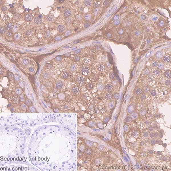 Immunohistochemistry (Formalin/PFA-fixed paraffin-embedded sections) - Anti-Serpin A5 antibody [EPR23337-69] (ab270450)