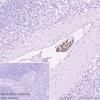 Immunohistochemistry (Formalin/PFA-fixed paraffin-embedded sections) - Anti-L1CAM antibody [EPR23241-224] (ab270455)