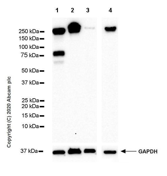 Western blot - Anti-L1CAM antibody [EPR23241-224] (ab270455)