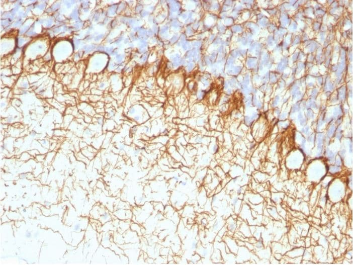 Immunohistochemistry (Formalin/PFA-fixed paraffin-embedded sections) - Anti-Neurofilament heavy polypeptide antibody [RT97] - BSA and Azide free (ab270560)