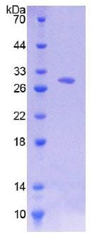 SDS-PAGE - Recombinant Human CD38 protein (His tag) (ab270589)
